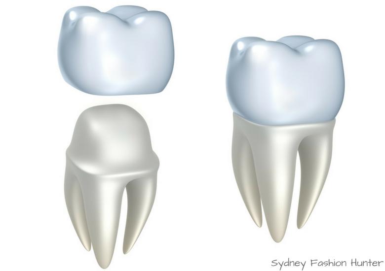 Fash Packing by Sydney Fashion Hunter: Destination Dentistry - Crown